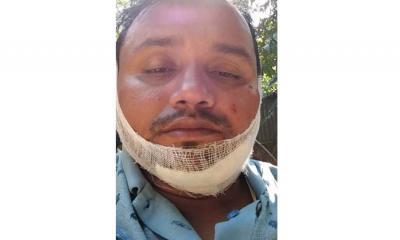 বাইক দুর্ঘটনায় সাংবাদিক শহিদুল আহত